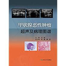 甲状腺恶性肿瘤超声及病理图谱