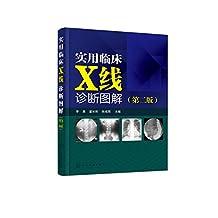 实用临床X线诊断图解(第二版)