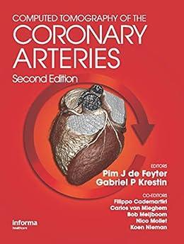 """Computed Tomography of the Coronary Arteries (English Edition)"",作者:[Pim J. de Feyter, G. P. Gabriel Krestin]"