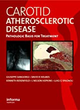 Carotid Atherosclerotic Disease: Pathologic Basis for Treatment (English Edition)
