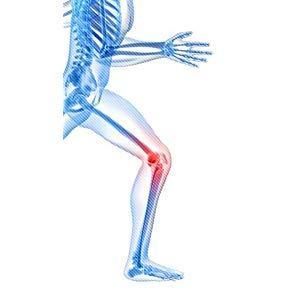 Mueller, knee, pain, brace