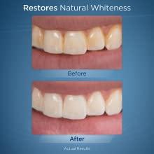 Wasserreiniger, [DentJet] Professionell Wasserdicht Zahnpflege Zahnreinigung Wasserstrahl